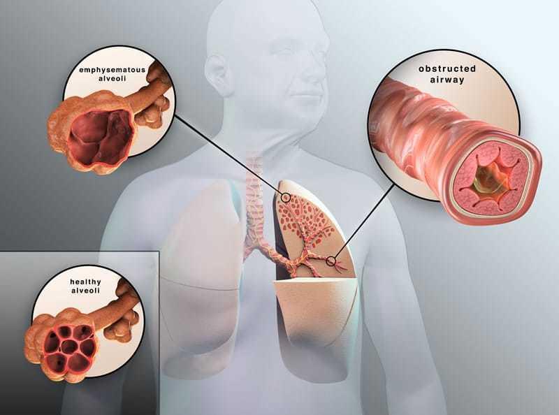 MSM bij Allergieën, Astma, COPD, Bronchieën