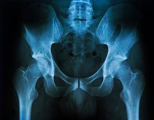 Osteoporose en magnesium. Calcium blijkt dan ook niet de oorzaak te zijn van osteoporose. Veel meer spelen tekorten aan magnesium en vitamine D een rol.